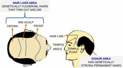 Hair Transplant Treatments