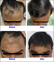 Hair Fall Treatment Solution India