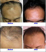 Hair Fall Treatment Services