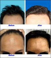 Hair Replacement Transplant