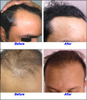 Hair Loss Treatment India